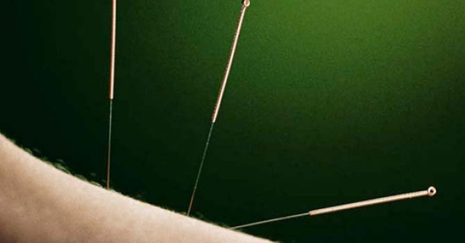 3 Acupunctuur Naalden