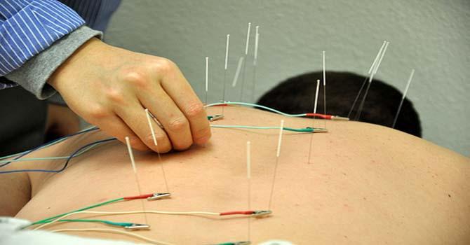 Acupunctuur Naalden Met Elektrisiteit