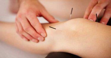 Acupunctuur Knie