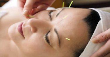 Acupunctuur Behandeling