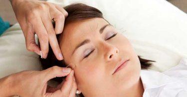 Slaap Acupunctuur