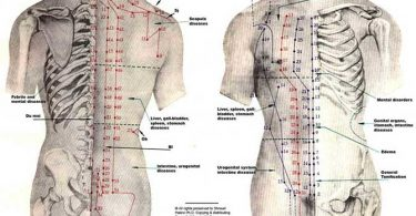 Acupunctuur In Beeld Gebracht