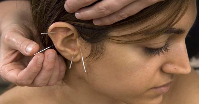 Acupunctuur Oor Naalden