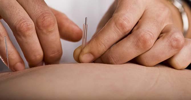 Acupunctuur Aanbrengen